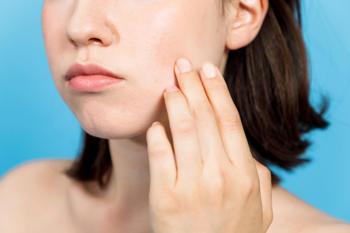 Serba Serbi Skin Barrier dan Mengapa Hal Ini Perlu Menjadi Prioritas Anda -  Beauty Journal